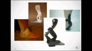 Step-Smart for Drop Foot  - Foot and ankle biomechanics