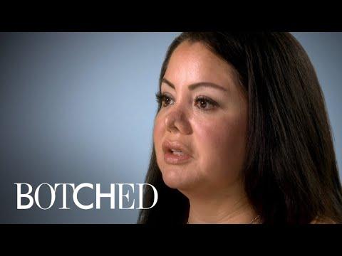 Una mujer se hizo una liposucción en Perú y le cambiaron la nariz (VIDEO)