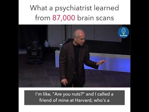 What a psychatrist learned from 87000 brain scans