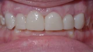 Porcelain Veneers 1