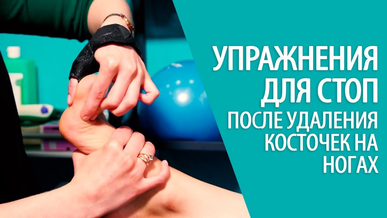 Упражнения для стоп после удаления косточек на ногах - хирургия стопы Алексея Олейника