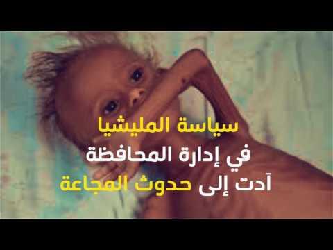 ميلشيا الحوثي وصالح تدمر محافظة الحديدة و تتسبب بمجاعة