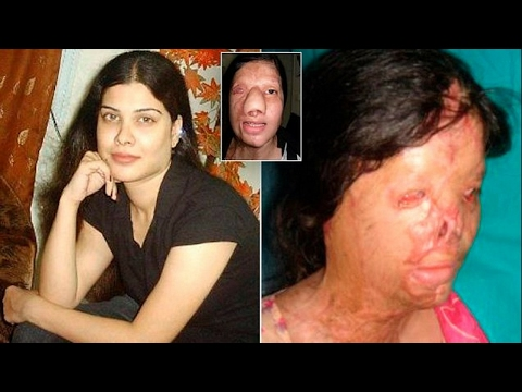Video Kanwal Qayyum - Pakistani woman has her entire face burned off with acid download in MP3, 3GP, MP4, WEBM, AVI, FLV January 2017