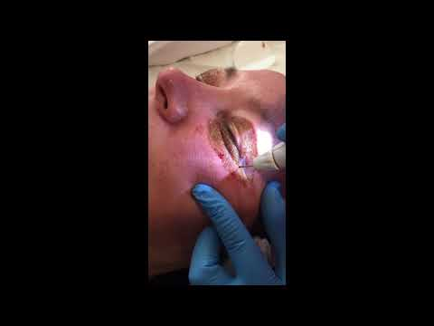 Plexr treatment Uk
