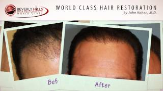 John Kahen MD Performs Corrective Hair Transplant Surgery for Natural Results Before and After
