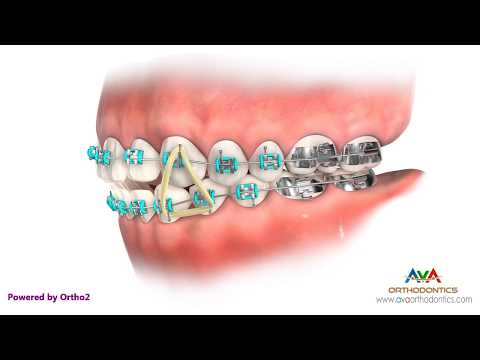 How To Wear Triangle Rubber Bands - Orthodontic Instruction