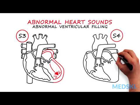 Abnormal Heartsounds and Murmurs: Which heart sounds should worry you