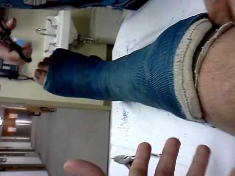 toglie gesso dopo 6 mesi..ecco come è diventata la gamba!