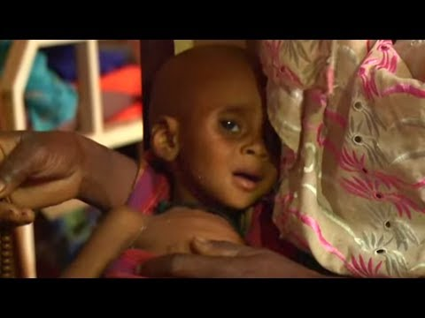 Cameroon:  Malnourished Children