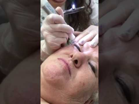 Non Surgical Blepharoplasty (eyelid lift) Treatment Sky Clinic