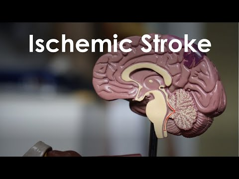 Ischemic Stroke and Transient Ischemic Attack for USMLE Step 1 and Step 2