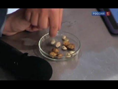 Камни в жёлчном пузыре - симптомы, причины и лечение