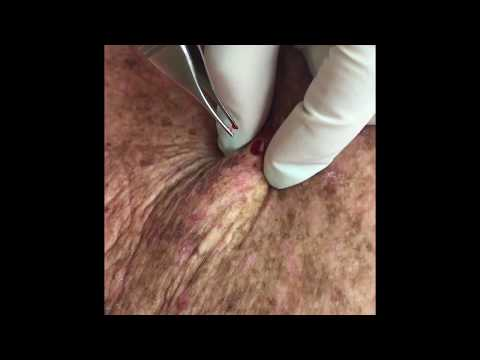 Repost of: Another method to pop out a cyst