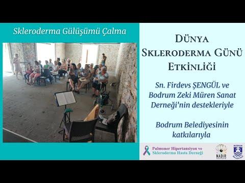 Skleroderma Gülüşümü Çalma -2 - 2019.06.06