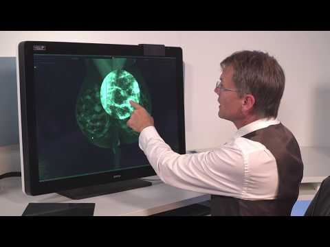 12 - SpotView Align™ - Intuitive workflow tools for medical displays