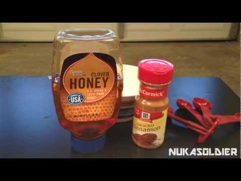 How To Cure Toothaches When SHTF – Cinnamon, A Preppers Spice