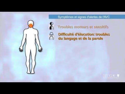 7-symptomes.et.signes.d.alerte.de.l.avc