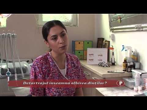 (P) Detartrajul înseamnă albirea dinţilor?
