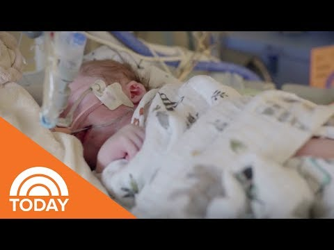 When A Child Has Congenital Heart Disease | TODAY