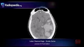 Stroke: Lobar Haemorrhage - Radiology Video Tutorial (MRI, CT)