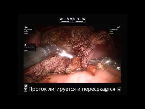 Робот ассистированная левосторонняя гемигепатэктомия по поводу цистаденомы
