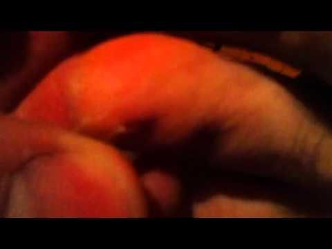 comment reparer la matrice de l'ongle