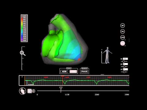 Europace : Validation of the mapping accuracy of a novel non-invasive epicardial and endocardial…