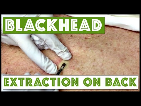 Updated blackhead cyst x2 extraction on the back!
