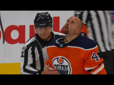 Video: Kassian cut by Glass after throwing hands