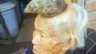 The 87-year-old woman with a HORN growing out of her head