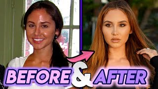 Video Catherine Paiz   Before and After Transformations   Plastic Surgery Transformation MP3, 3GP, MP4, WEBM, AVI, FLV September 2019