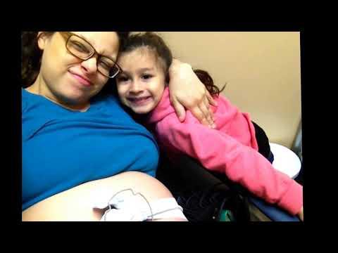 NST for Polyhydramnios Pregnancy @ 8 Months