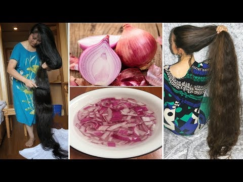 Bangla Hair Care Tips_Permanently Stop Hairfall With Onion In 7 Days_bangla Beauty Tips_rupchorcha