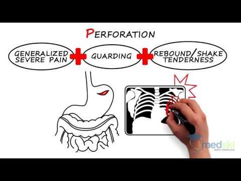 Gastroenterology - Acute Non-Traumatic Abdominal Pain: By Heather Murray M.D.