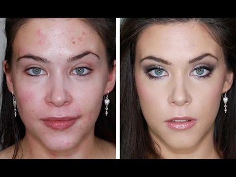 ACNE FOUNDAION ROUTINE FOR FLAWLESS SKIN (FULL COVERAGE TUTORIAL) BLEMISHES, ACNE, SCARING