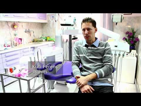 altatásos fogászati kezelések