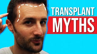 Video Top 3 - Biggest Hair Transplant Myths! MP3, 3GP, MP4, WEBM, AVI, FLV Juli 2018
