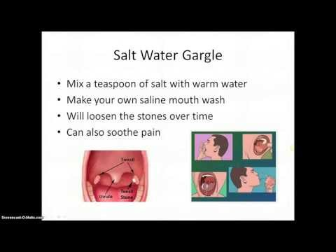 How To Get Rid Of Salivary Gland Stones Naturally
