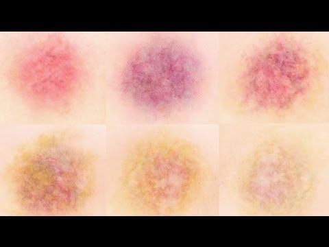 bruises - Hey guys! Today I'm tackling bruises and the various stages as they heal. In this tutorial I demonstrate five different bruises. General info to keep in mind...