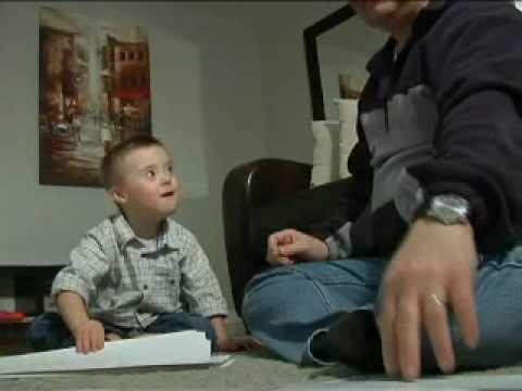 Watch video Down Syndrome Testing
