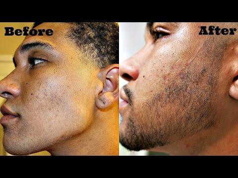 My Beard Journey Minoxidil Week 6 UPDATE