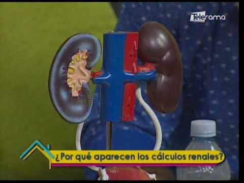 ¿Porqué aparecen los cálculos renales?