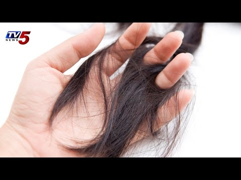 Hair fall and Dandruff   Vibes Remedies and Solution For Hair Loss : TV5 News
