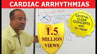 Cardiac Arrhythmias - Atrial Fibrillation - Ventricular Fibrillation - Cardiology - Ventricular tachycardia - Supraventricular Tachycardia - Sinus Bradycardia - Atrial flutter. Watch 700+ more videos at https://www.DrNajeebLectures.comIn this video you will learn in detail about: Cardiac Arrhythmias (Basic Concepts) Introduction. What is arrhythmia? What is normal cardiac rhythm? Criteria for normal cardiac rhythm.  A. heart rate 60-100 beat per minute. B. cardiac impulse origin should be from SA node. C. cardiac impulse should propagate through normal conduction pathway. D. normal velocity.What is tachycardia? Simple tachycardia? Paroxysmal, flutter, fibrillation? What is bradycardia and its types? What is meant by sinus arrhythmia? Atrial tachycardia, junctional arrhythmia? Ventricular arrhythmia? Supra-ventricular Tachyarrhythmia. Mechanisms of cardiac Arrhythmia.  A. increase automaticity. B. triggered automaticity. C. Re-entry (circle movement)What is automaticity, brief mechanism? Brief mechanism of trigger automaticity. What is E.A.D AND D.A.D? How re-entry of current occurs in heat? Sinus arrhythmia and presentation on ECG/   A. PHYSIOLOGICAL SINUS ARRHYTHMIA B. SINUS TACHYCARDIA C. SINUS BRADYCARDIA.sinus tahcy-brady syndrome (sick sinus syndrome) Atrial tachyarrhythmia, atrial tachycardia, atrial flutter, atrial fibrillation. Drugs used in atrial tachycardia. Cardiac Arrhythmias (Basic Concepts) Why AV node is slow conductor? Why current conduction is fast in Purkinje system. ECG (NORMAL) What is junctional block? (Nodal block, heart block). A degree heart block. B degree heart block. C degree heart block. ECG graph showing I, II, III-degree heart block. II-degree heart block, Mobitz I and Mobitz II, 2; 1heart block presentation on ECG. Cardiac Arrhythmias (Basic Concepts) Part 3 Junctional tachycardia. (Nodular tachycardia) Brief explanation of pathological connection. (Bundle of Kent). What is Wolff Parkinson white syndrome? Ventricular tachyarrhythmia. 