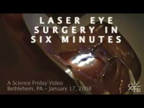 LASIK Eye Surgery in Six Minutes