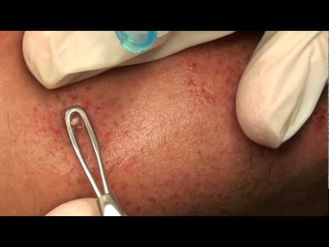 Fast and furious pimple pop!