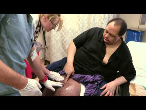 The man with the 10 stone (100lb) testicles (2013) - The Journey of Wesley Warren Jr. to get treatment for his extremely large testicles
