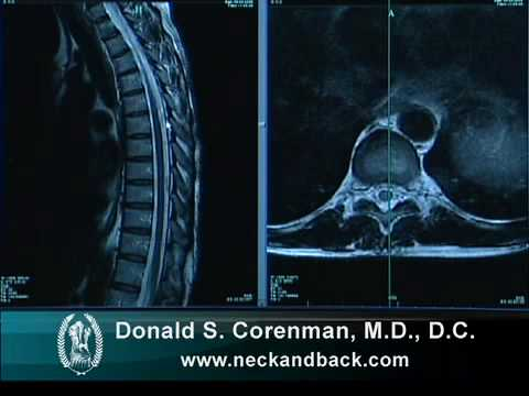 How to Read a MRI of the Normal Thoracic Spine (Mid Back) | Vail Spine Specialist