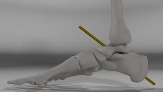 Over Pronation & Supination Motion Biomechanics of the Subtalar Joint Explained