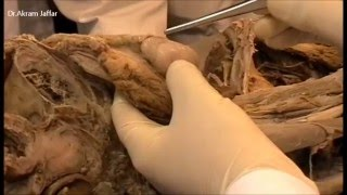 Testis: Dissection